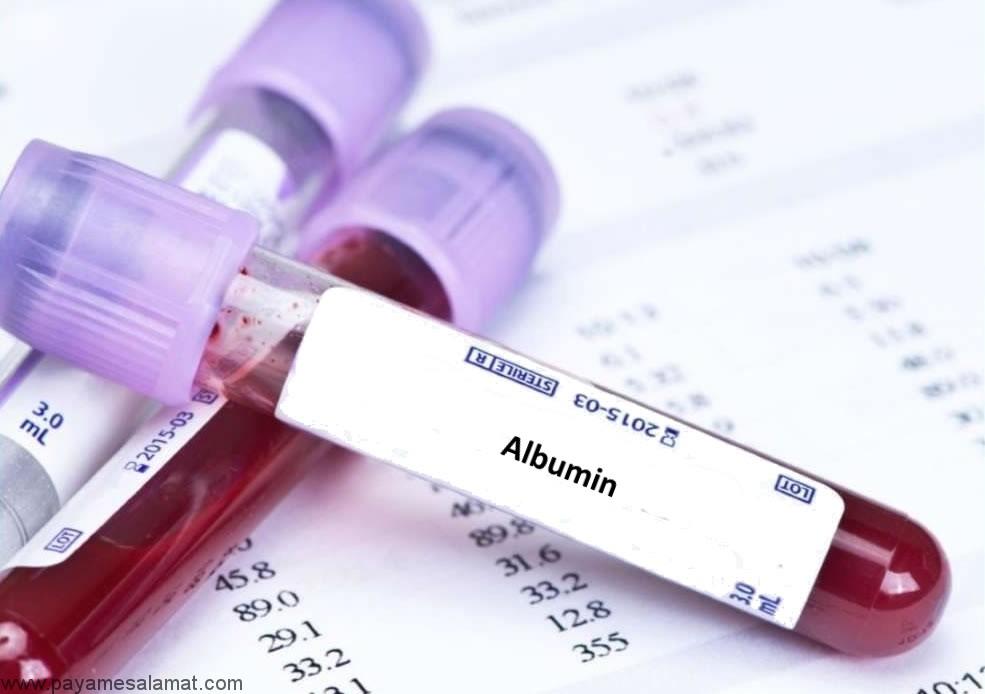 کاهش آلبومین خون