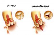 نارسایی دریچه آئورت قلب ؛ علل، نشانه ها، تشخیص و درمان