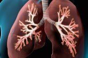 روش خانگی و ساده برای درمان بیماری مزمن انسدادی ریه (COPD)