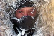 سرمازدگی ؛ عوامل خطر، نشانه ها، تشخیص، درمان، عوارض و روش های پیشگیری