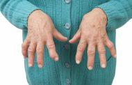 آرتریت روماتوئید ؛ علل، نشانه ها، تشخیص و درمان