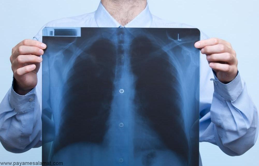 آتلکتازی ؛ علت، عوامل خطر، علائم، روش های تشخیص و روش های درمان