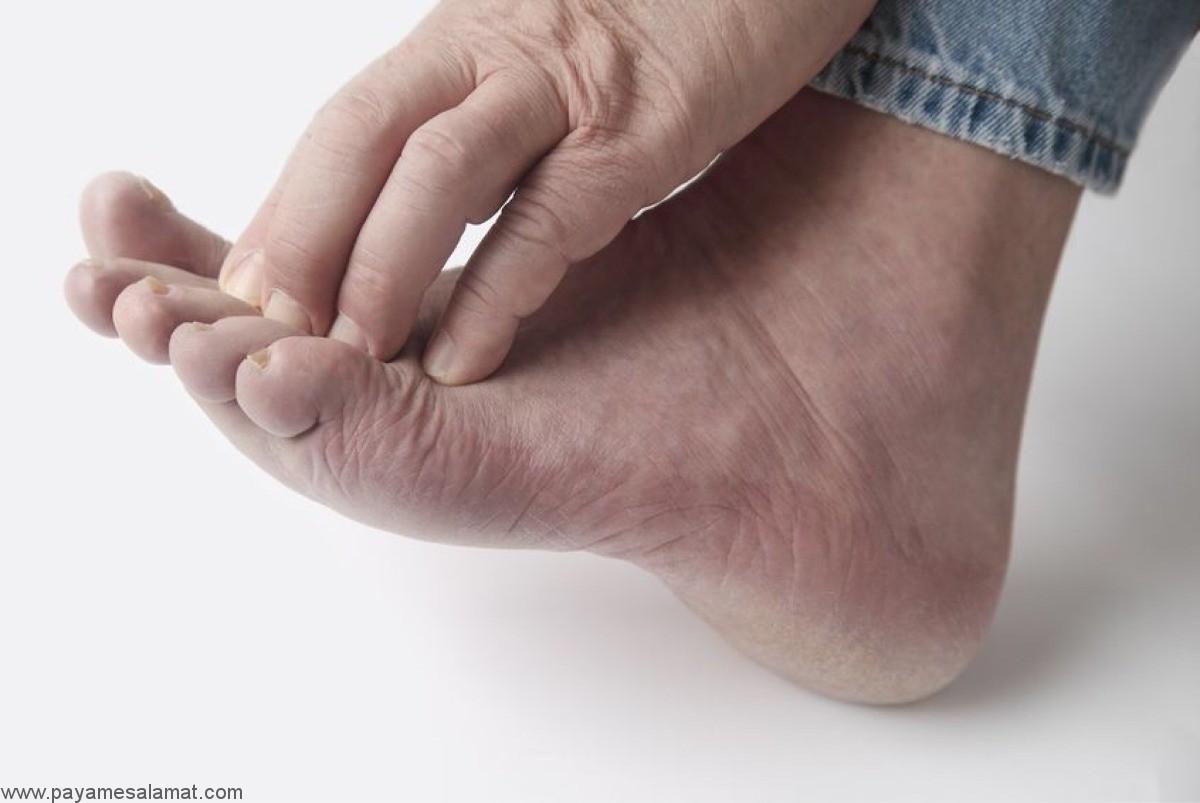 علل نوروپاتی در پاها و ساق پاها چیست؟