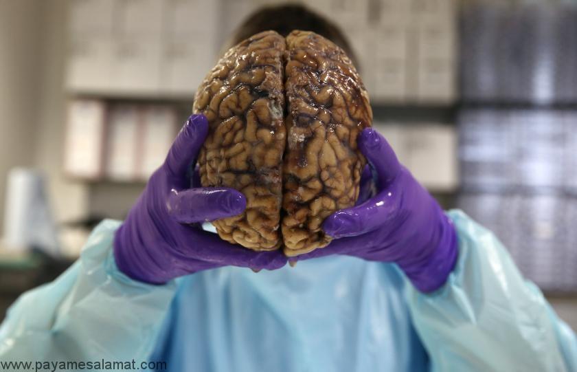 معرفی و آشنایی با بیماری های پوشش مغز