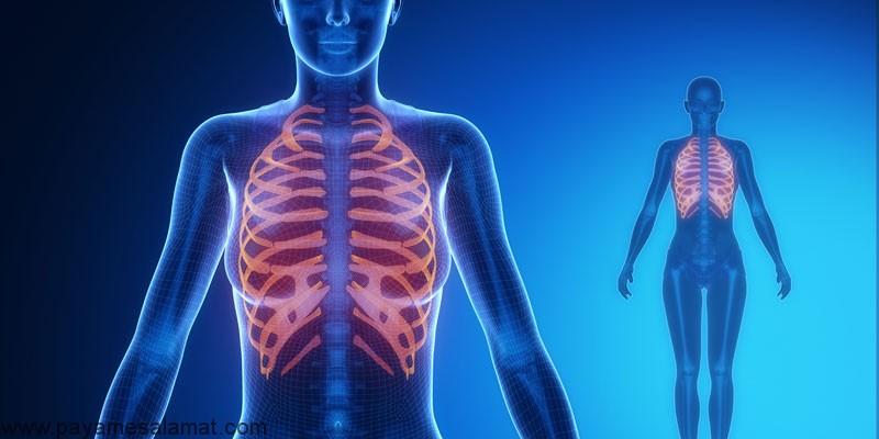 درد نخاع سینه ای یا توراسیک