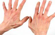 بیماری هارت ناپ ؛ علل، علائم، روش های تشخیص و درمان ها