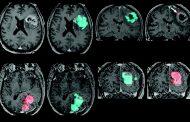 علل ایجاد تومور گلیوبلاستوم مولتی فرم مغز