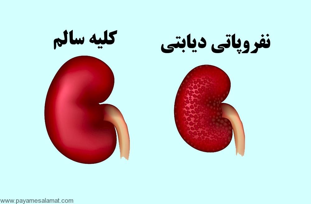 نفروپاتی دیابتی ؛ نشانه ها، علل، عوامل خطر، عوارض، روش های تشخیص و درمان