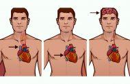 تفاوت حمله قلبی، ایست قلبی و سکته مغزی چیست و این بیماری ها چه نشانه هایی دارند؟