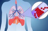 آمبولی ریه ؛ علل، نشانه ها، عوامل خطر و روش های درمان این بیماری