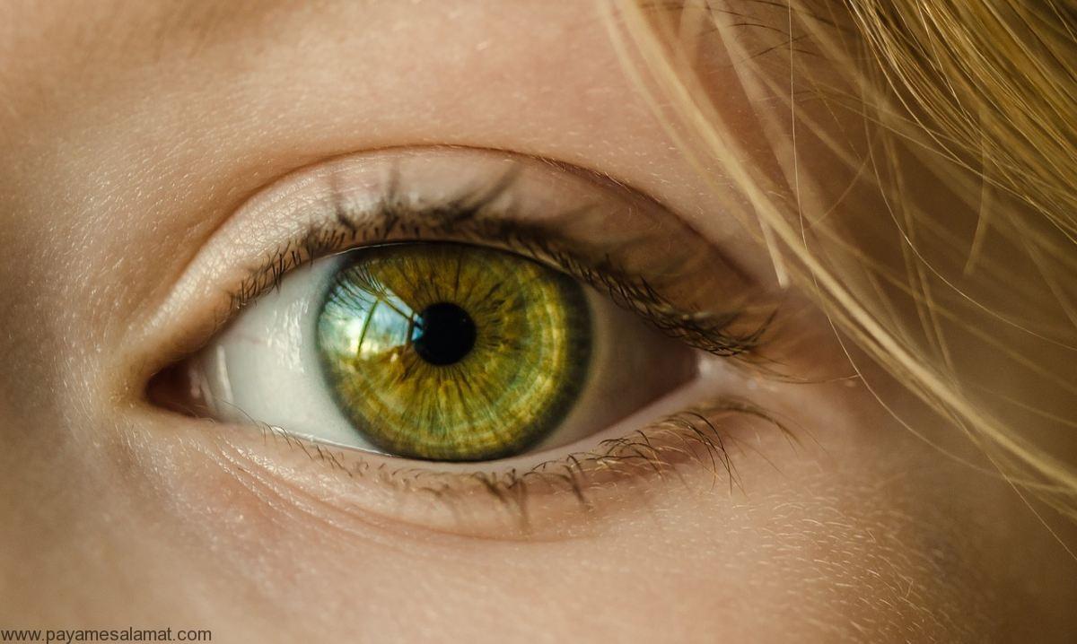 علائم و نشانه های تومور چشم یا سرطان چشم
