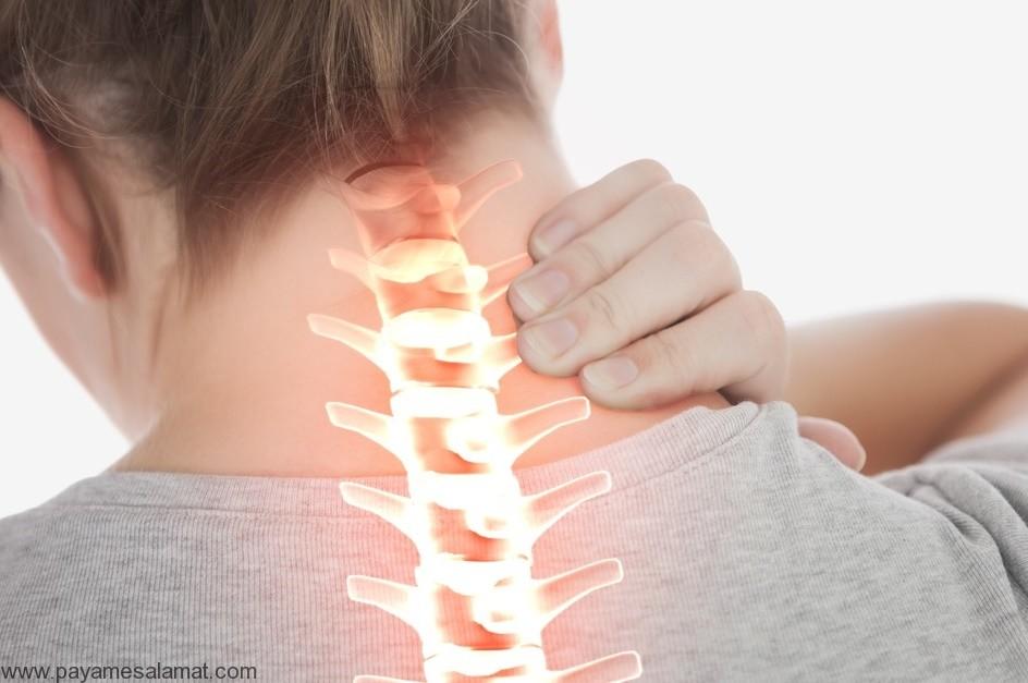 اسپوندیلوز گردن ؛ علل، عوامل خطر، نشانه ها، تشخیص و روش های درمان