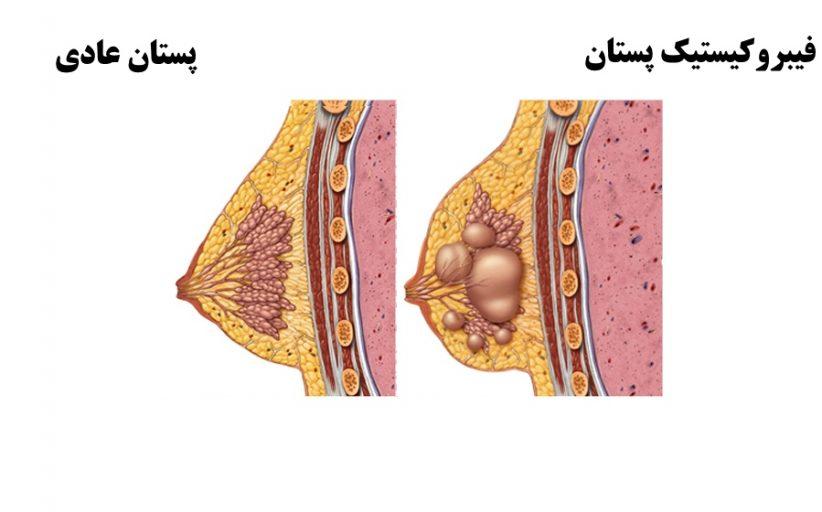 فیبروکیستیک پستان ؛ نشانه ها، علل، عوامل خطر و روش های درمان