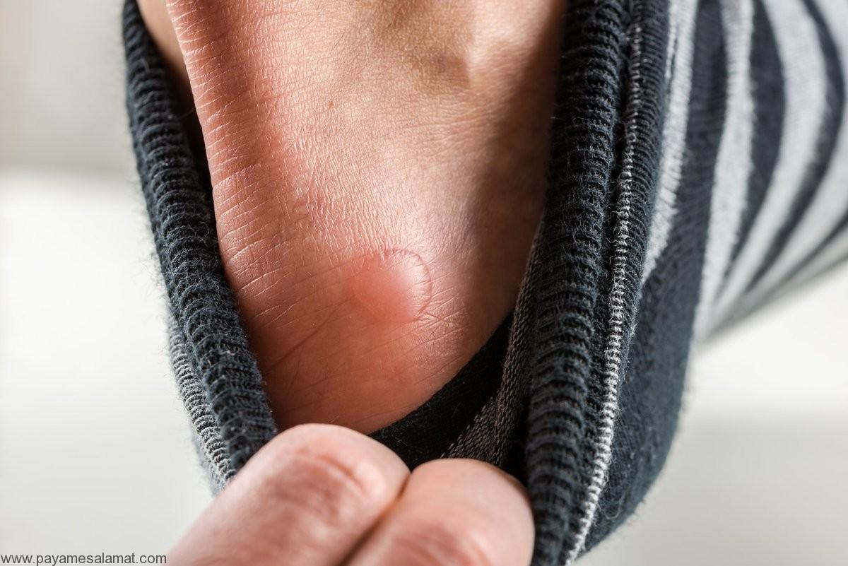 درمان تاول پا در خانه و به کمک مواد طبیعی