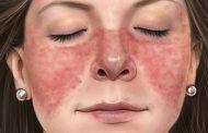 لوپوس اریتماتوز سیستمیک (SLE) ؛ نشانه ها، علل، تشخیص، درمان و عوارض جانبی