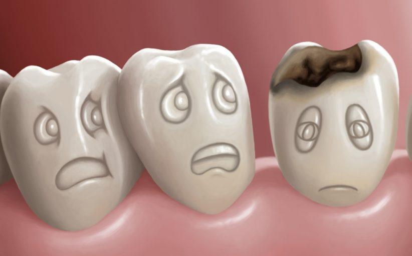 روش های خانگی برای درمان پوسیدگی دندان