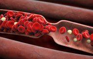 نشانه ها و علائم لخته شدن خون در بدن چیست؟