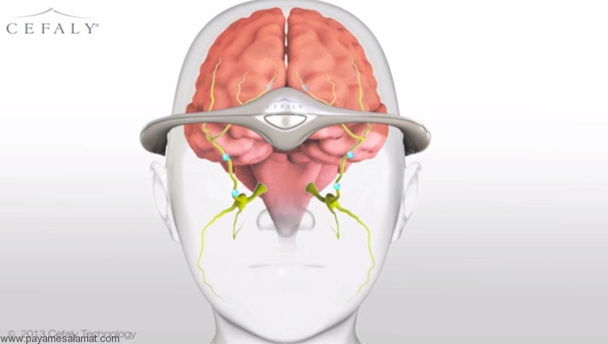 دستگاه Cefaly و پچ Zecuity برای درمان و پیشگیری از سردردهای میگرنی