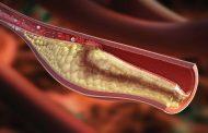 چربی خون ترکیبی ارثی (هیپرلیپیدمی ترکیبی ارثی) ؛ نشانه ها، عوامل خطر، تشخیص و درمان