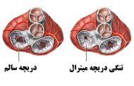 تنگی دریچه میترال ؛ علل، علائم، روش های تشخیص و درمان این بیماری