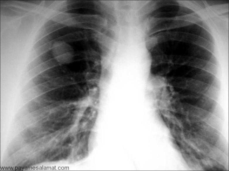 ندول منفرد ریه (SPN) ؛ علل، روش های تشخیص و روش های درمان این بیماری