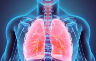 فیبروز ریه ؛ نشانه ها، علل، عوامل خطر، روش های تشخیص و روش های درمان