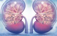 نفریت لوپوس ؛ نشانه ها، مراحل، روش های تشخیص، عوارض و روش های درمان این بیماری