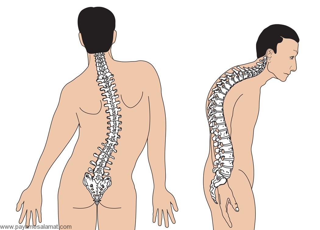 اسکولیوز (انحنای ستون فقرات)