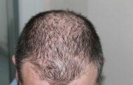 عوارض جانبی استفاده از روگین برای رشد مو