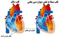 نقص دیواره بین بطنی ؛ علائم، علل، عوامل خطر، عوارض و روشهای پیشگیری، تشخیص و درمان