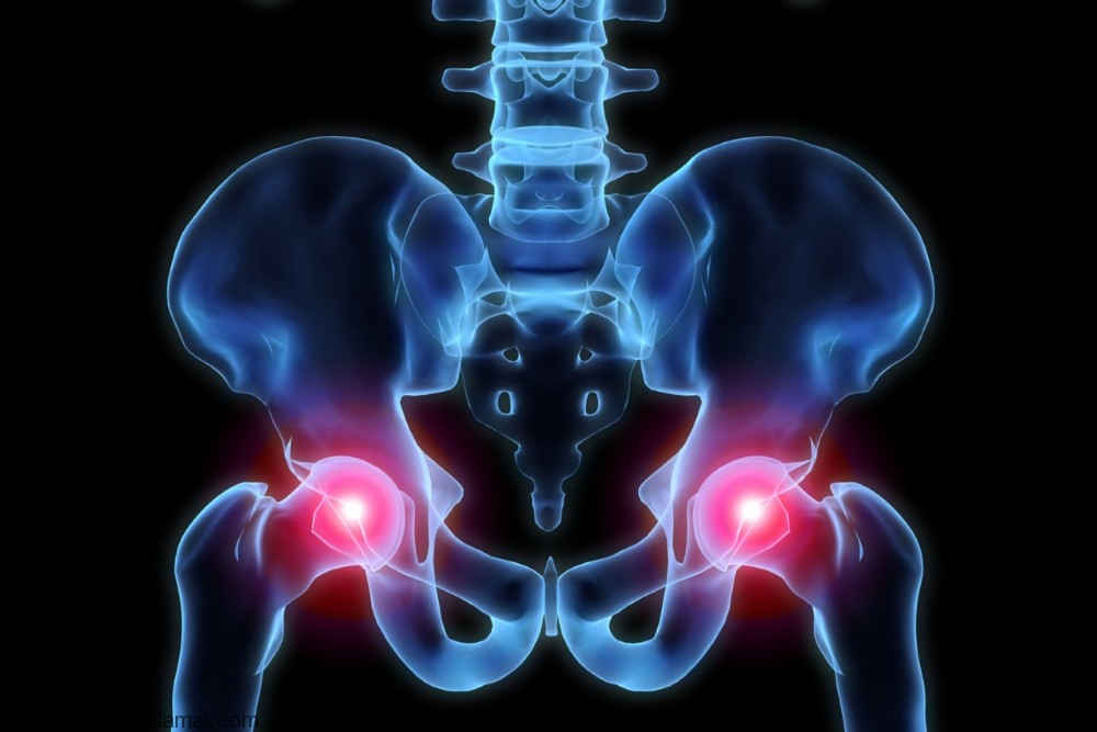 درد استخوان لگن ؛ علل و روش های درمان طبیعی این نوع درد