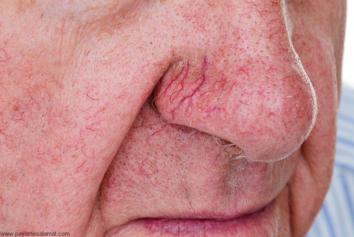 رگ های قرمز روی صورت ؛ علل و روش های درمان این ضایعات
