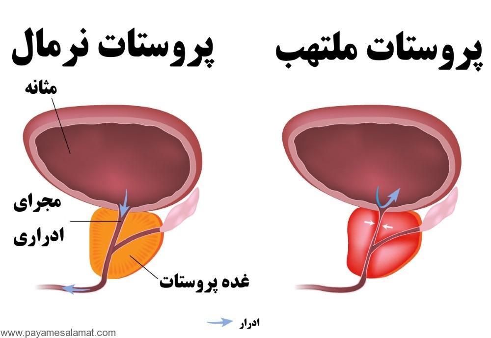 پروستاتیت مزمن ؛ نشانه ها، علل، روش های تشیخص، روش های درمان و پیشگیری از این بیماری