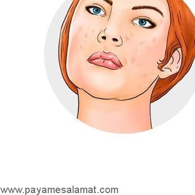 کاربردهای پوست موز
