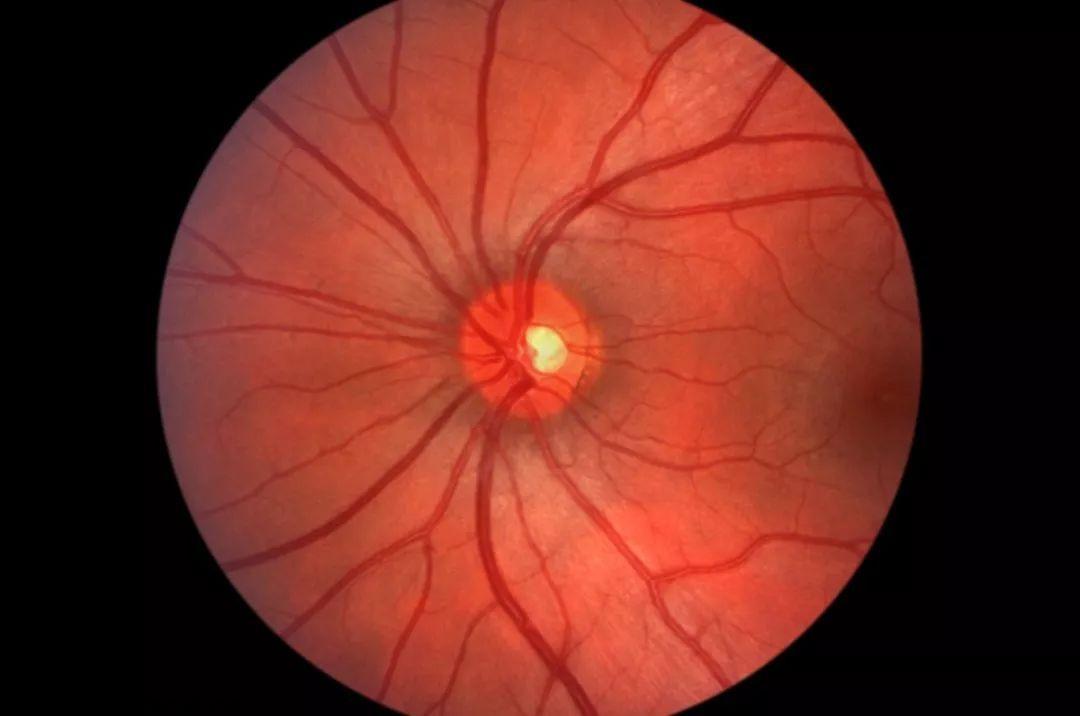 نوریت اپتیک ؛ نشانه ها، علل، عوامل خطر، عوارض، روش های تشخیص و درمان
