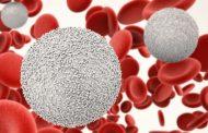 چه چیزی باعث افزایش لنفوسیت در خون می شود؟