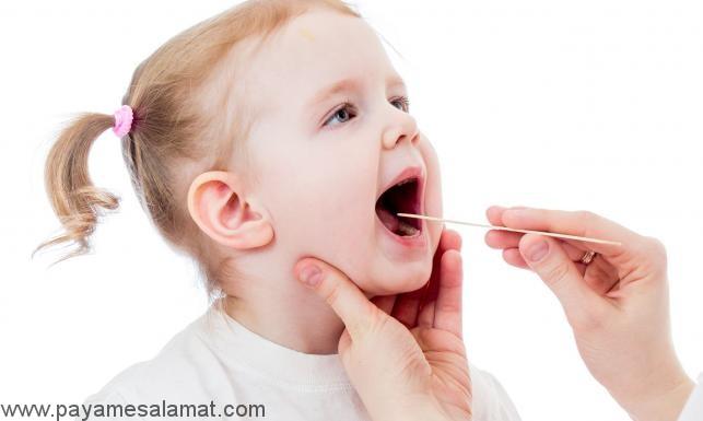 درمان بزرگ شدن لوزه سوم در کودکان (بزرگ شدن آدنوئید)