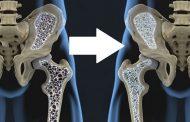 درمان پوکی استخوان و ۷ راه طبیعی برای افزایش تراکم استخوان