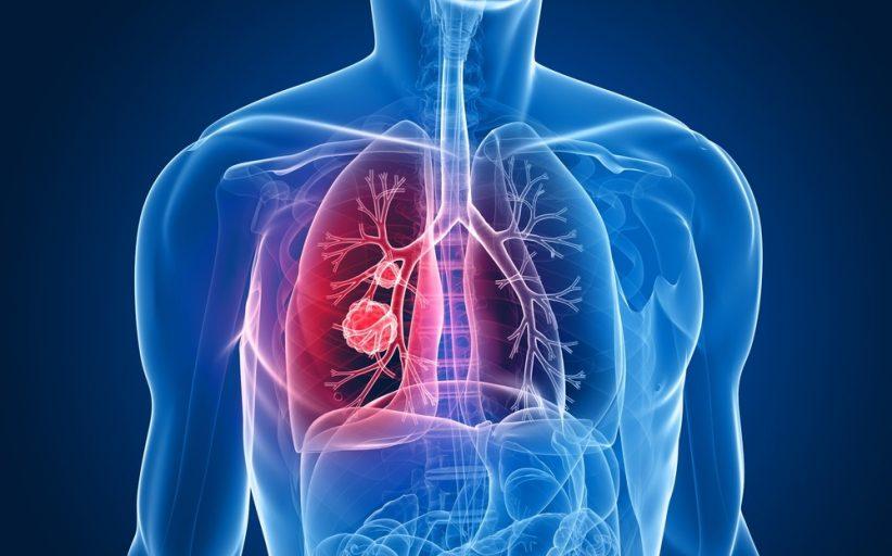 سرطان پیشرفته ریه ؛ نشانه ها، روش های تشخیص و روش های درمان
