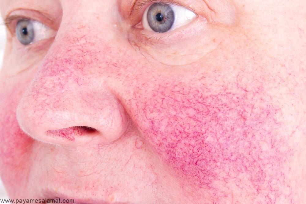 درمان پاره شدن مویرگ های صورت به کمک روش های طبیعی