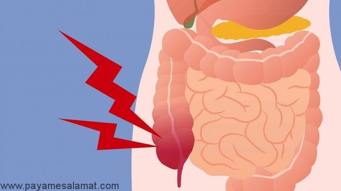 علائم اولیه سرطان کولون