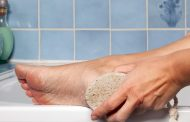 درمان پوسته پوسته شدن پاشنه پا به روش های طبیعی و ساده