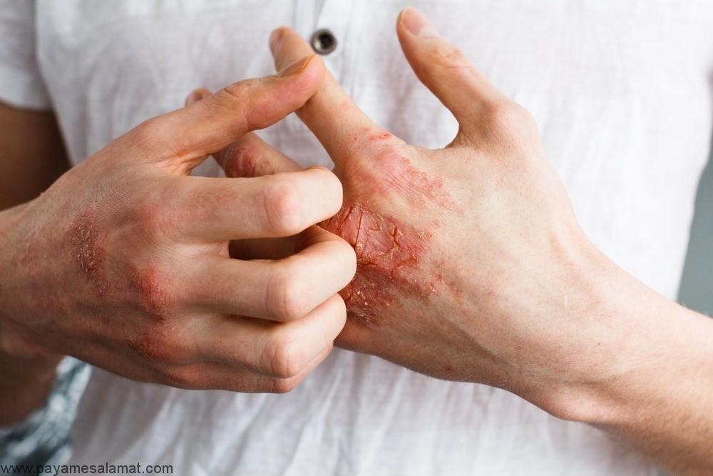 نکاتی برای بهبود اگزما و کنترل این بیماری پوستی
