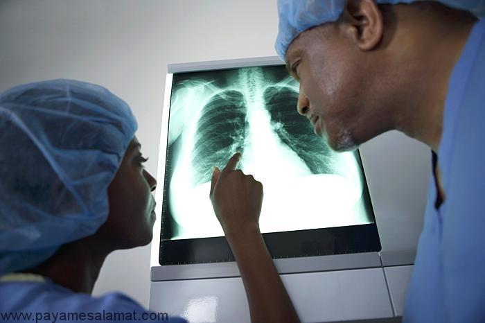 زخم ریه (اسکار ریه) ؛ علل، نشانه ها و روش های درمان