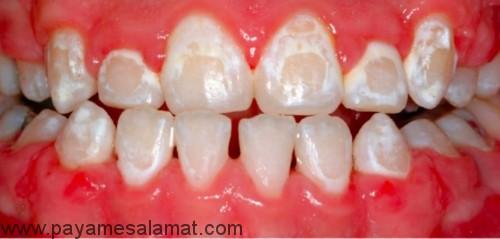 حذف لکه های سفید روی دندان