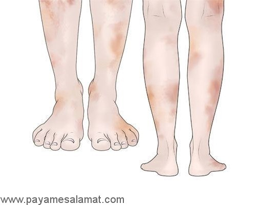 بیماری های پوستی مرتبط با دیابت