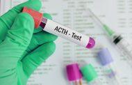 کمبود ACTH ؛ از نشانه ها و علل تا روش های درمان