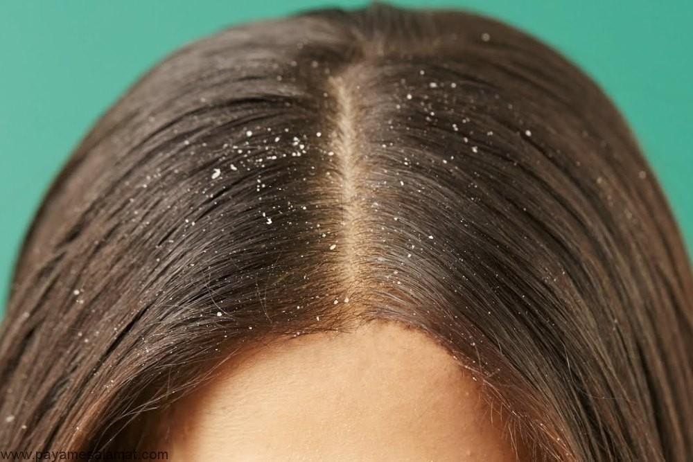 جلوگیری از شوره سر در زمستان با کمک روش های ساده