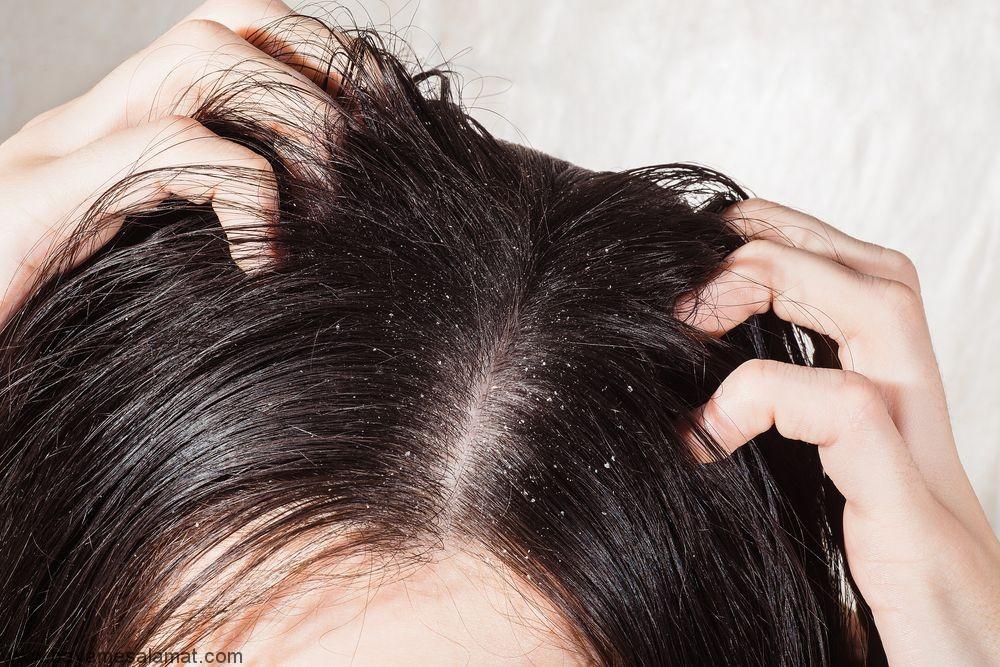 درمان خشکی پوست سر به کمک روش های طبیعی و ساده