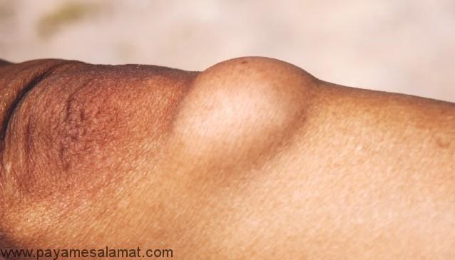لیپوما یا همان غده چربی زیر پوستی